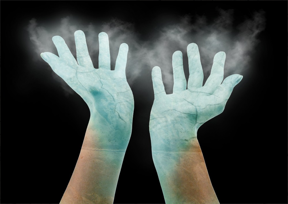 Raynaud's Syndrome
