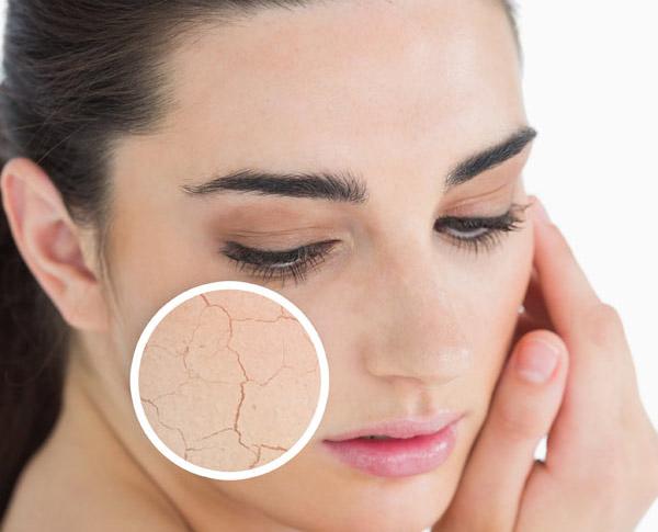 Skin cance