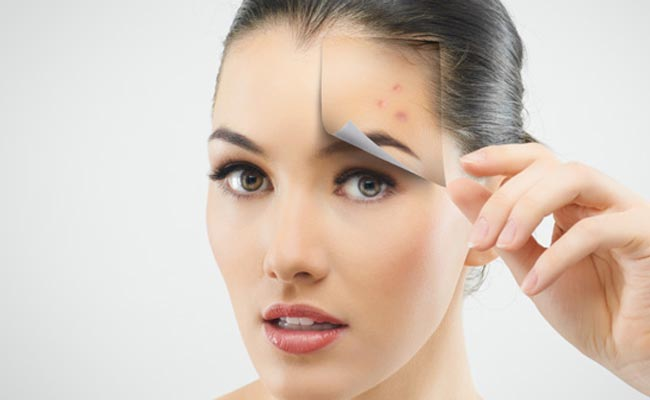 Get rid of pimples