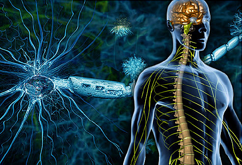 Multiple sclerosis may cause a disturbance of the blood vessels in the neck?