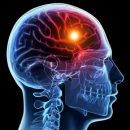 When stroke occurs every minute counts