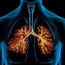 Acute bronchitis is one of the most common diseases